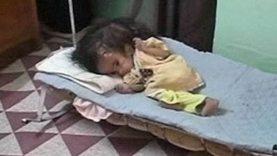 Fatima Ahmed was born in Fallujah with deformities that include two heads