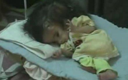 Irak Traces d'uranium après les bombes US sur la ville, hantée d'enfants difformes (2/3)